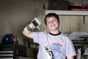 3D prostetické náhrady si vytlačíte priamo doma